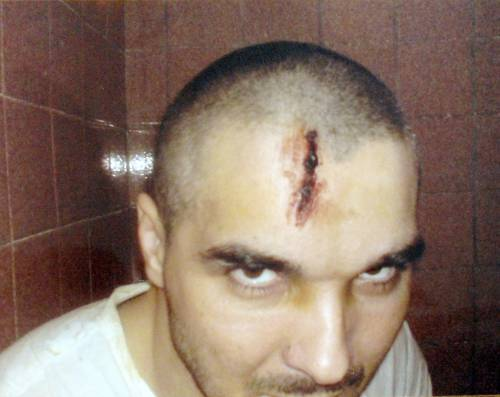 Рана на голове Зубайра Зубайраева. Лечебно-исправительное учреждение №15 (ЛИУ-15) Волгограда. Ноябрь 2008 г. Фото предоставлено адвокатом заключенного Мусой Хадисовым